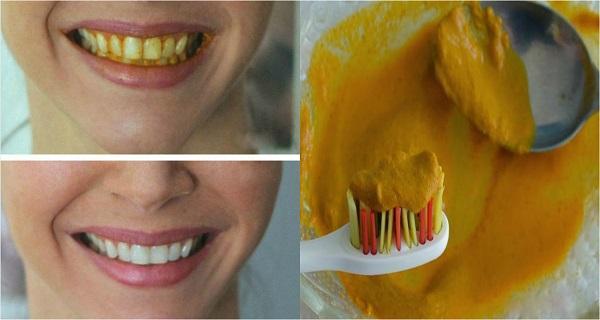 وصفة الكركم لتبييض الأسنان