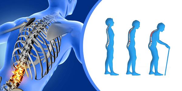 وصفة زيت زهرة الربيع المسائية لعلاج هشاشة العظام