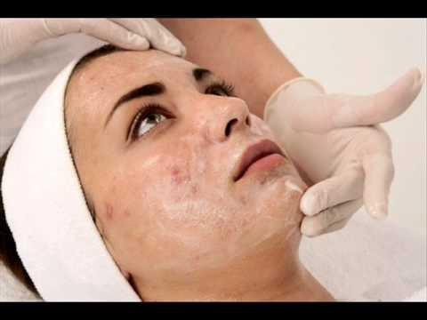علاج حب الشباب Acne بالطرق الطبية