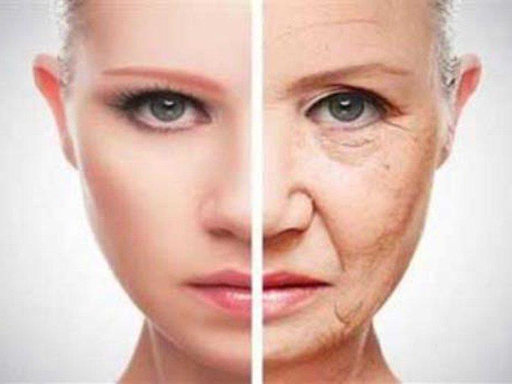 علاج التجاعيد Wrinkles