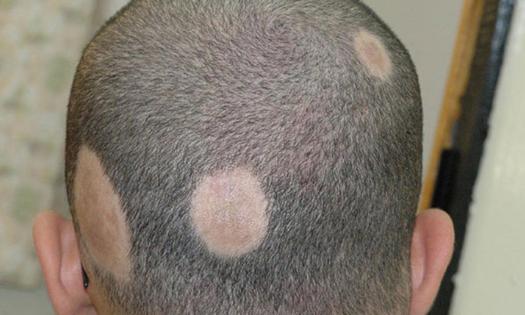 مناطق وجود الثعلبة Alopecia
