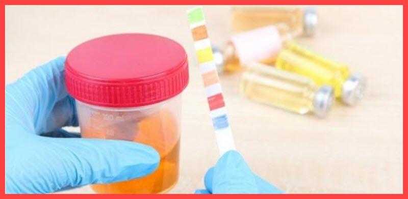 أسماء أدوية علاج التهاب المسالك البولية